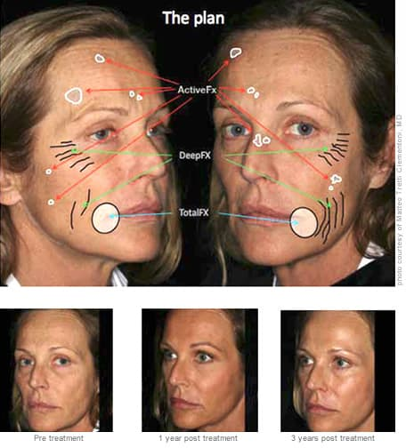 Total FX Fractional Laser Resurfacing Treatment