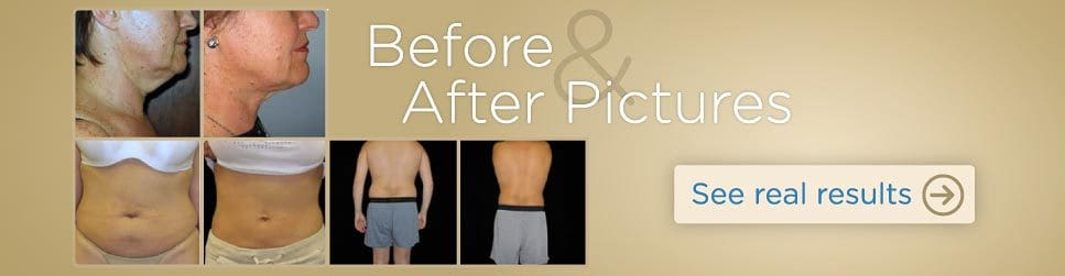 slide2-lipobeforeafter