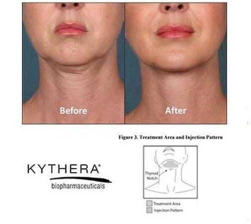 Kybella double chin before and after