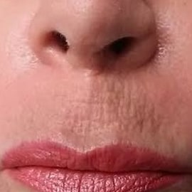 Restylane Silk To Upper Lip Lines Before Amp After Dr Osman