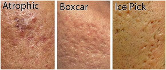 Laser Acne Scar Treatment Calabasas Amp Northridge Los