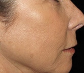 Fractional resurfacing wrinkles after