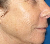 Fractional resurfacing wrinkles before