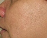 Laser acne scar treatment after