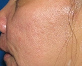 Laser acne scar treatment before