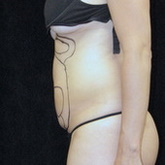 Abdominal liposuction before