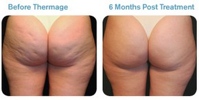 Thermage Cellulite Before and After