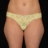 Outer thigh liposuction before