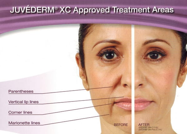 Areas approved to treat with Juvederm XC