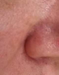 Dilated capillaries around nose