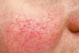 Dilated capillaries on cheek