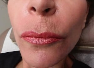 Restylane Silk Lip Lines Before