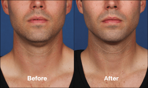 Kybella Before and After Male