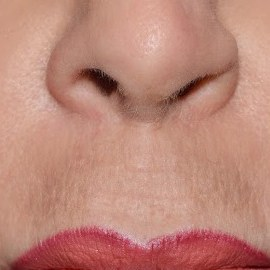 Restylane Silk Upper Lip Lines - After