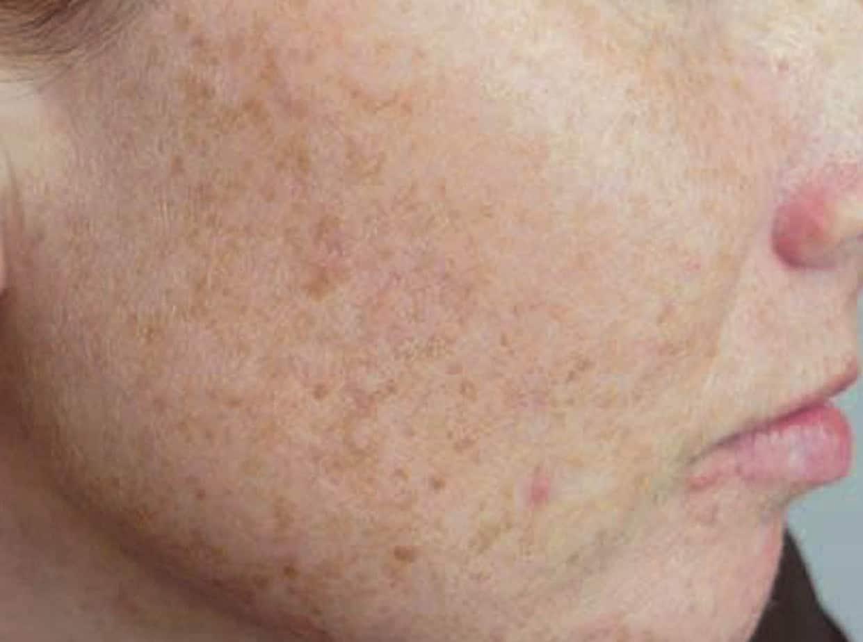 sunspots-face • Osman Dermatology