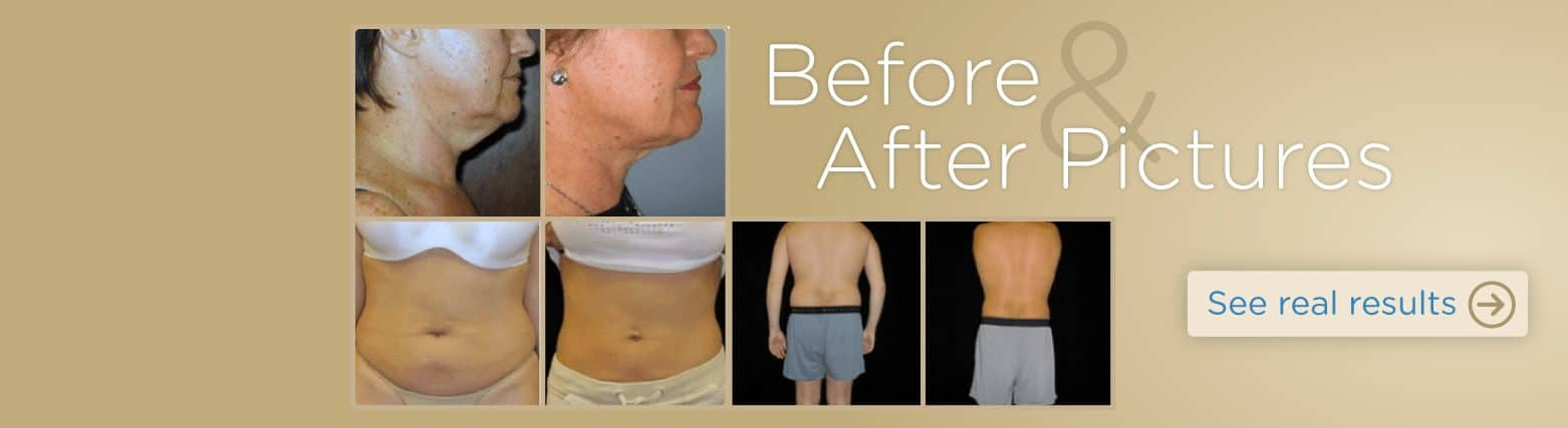 Cosmetic dermatology and liposuction before and after pictures