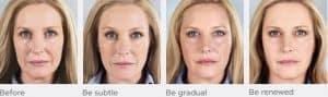 Sculptra face treatment progression model A