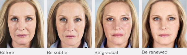Sculptra face treatment progression model A
