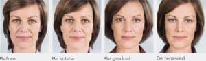 Sculptra face treatment progression model B