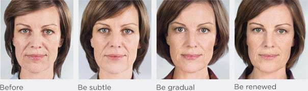 Sculptra face treatment progression model B