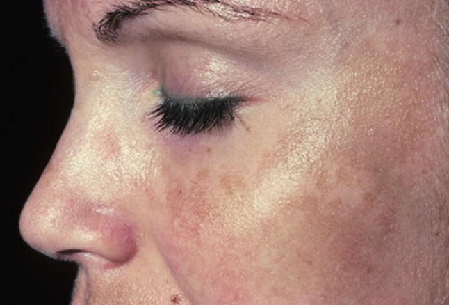 Melasma on cheek of woman